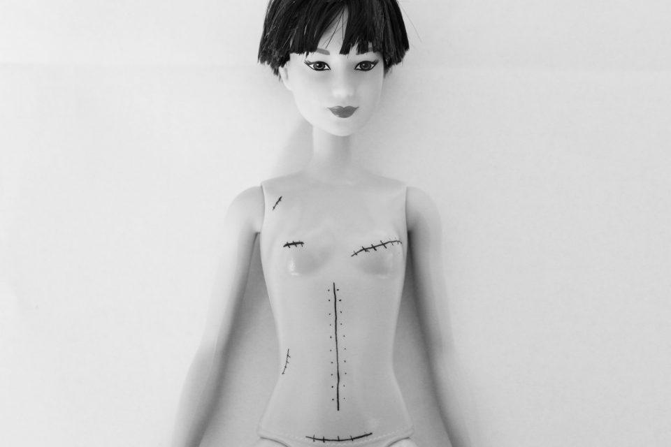 cicatrice et tatouage